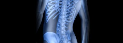 Pathokinesiology of the Lumbar Spine