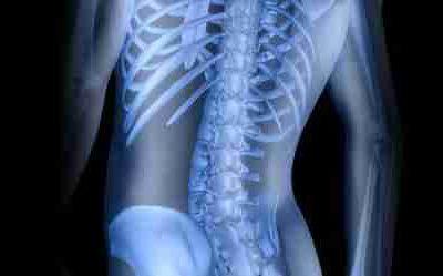 Pathokinesiology of the Lumbar Spine
